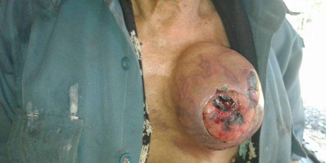 Pak Kibli Penderita Tumor Telah ditangani